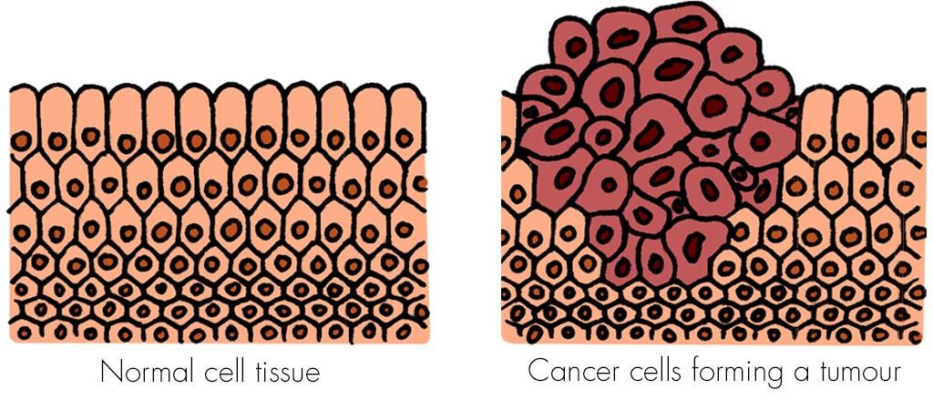 Cancer cells forming a tumour